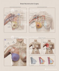 Culley_breast-reconstruction